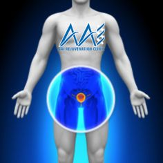 Testosterone Therapy and Prostate cancer is a considerably well known paradox, right? Did you know that there is actually a lack of evidence for testosterone therapy causing prostate cancer? Prostate Cancer Causes, Testosterone Therapy, Best Healthy Diet, Stay Healthy, Healthy Living, Robotic Surgery, Hospital Health, Foods To Eat, Herbs