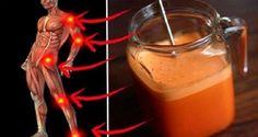 Super silný liek na kosti a kĺby: Potlačí zápal, odstráni bolesť a obnoví chrupavky | Chillin.sk