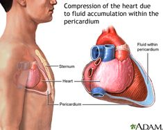 Cardiac Tamponade, Article from the NIH