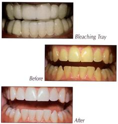 Find a huge range of teeth whitening gels, whitening kits, trays etc
