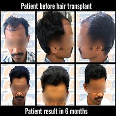 La densitae Hair Transplant is one of the best hair transplant clinic in pune providing all modalities of treatment with latest techniques in Hair Transplant. Hair Transplant Results, Hair Transplant Cost, Hair Transplant Surgery, Anti Aging Treatments, Skin Treatments, Hair Clinic, Advanced Hair, Hair Restoration