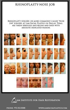 """Dallas Rhinoplasty surgeon covering all facets of rhinoplasty surgery. Rhinoplasty, or more commonly known as """"Nose Job"""", are performed @LamFacialPlastics in Dallas, Texas. #Rhinoplasty #NoseJob #LamFacialPlastics #DallasPlasticSurgery #PlasticSurgery #DrSamLam"""