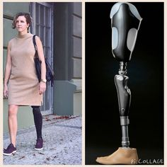 3D printed cover on prosthetic leg to give the leg a symmetry #prosthetics #leg #cover #3dprint #3dmarket #3dprinter #3dprinting #design #designer #development #prototype #shoe #electronics #technology #tech #electronic #device #gadget #gadgets #instatech #instagood #geek #techie #nerd #techy #photooftheday #computers #laptops  #future by 3d_market