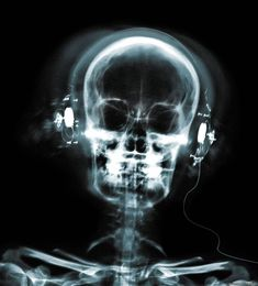 x-ray | picture of a human head skull listening to music x ray