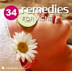 1. Apply Some Apple Cider Vinegar 2. Make An Orange Peel Paste 3. Try Some Tea Tree Oil 4. Strawberries And Honey 5. Aloe To Soothe Your Acne 6. The Wonders Of Sodium Bicarbonate 7. Make A Face Mask From Cinnamon And Honey  Remedies For acne #acne  Read more at: http://clear-skinsecret.blogspot.com/2015/04/acne-diet-link-exposed-is-there-acne.html