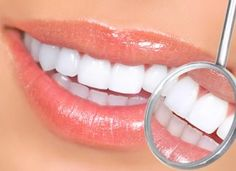 The Best Teeth whitening Product Pen. Instant professional results within days. You can do this at home and overnight so you do not need to go to the dentist anymore. Fast and quick white teeth treatment for smokers. Teeth Whitening Remedies, Natural Teeth Whitening, Whitening Kit, Smile Teeth, Teeth Care, Good Teeth, Amil Dental, Veneers Teeth, Teeth Health