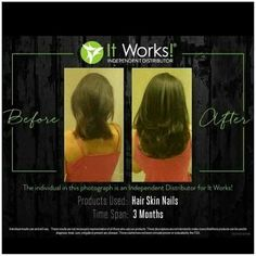 Hair Skin & Nails It Works Hair Skin&Nails is a supplement specifically targets the exact nutrients you need for optimum hair, skin, and nail health. It gets you healthier on the Insid… It Works Wraps, My It Works, Beard Growth, Hair Growth, Cellulite, Itworks Hsn, It Works Distributor, It Works Global, It Works Products