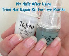 8 Great Tips To Repair Nails After Acrylics