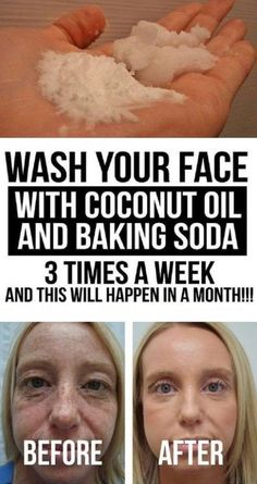 Coconut oil for skin - Wash your face with coconut oil and baking soda 3 times a week, and this will happen in a Month Facebfit com Baking Soda Face Wash, Baking Soda Shampoo, Baking Soda For Skin, Baking Soda Hair Growth, Baking Soda Nails, Baking Soda Mask, Baking Soda Scrub, Baking Soda Coconut Oil, Baking Soda Uses