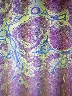 Connective tissue under a microscope