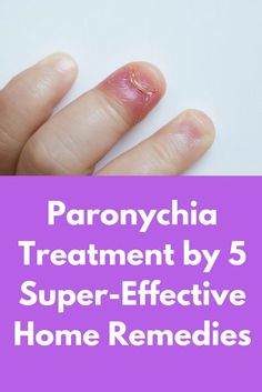 Paronychia Treatment By 5 Super Effective Home Remedies Is A Nail Infection Which