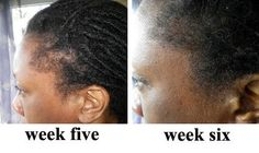 before and after IHRF formula - Best hair loss treatment in men and women for hair re-growth http://best-hairloss-treatment-grow-hair-faster.org/