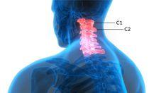The Reason Your Head Feels Heavy - Regenexx Neck Headache, Your Head, Feels, Muscle, Muscles