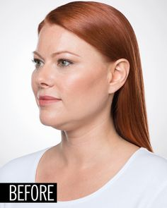 How a Dermatologist Can Eliminate Your Double Chin With an Injection