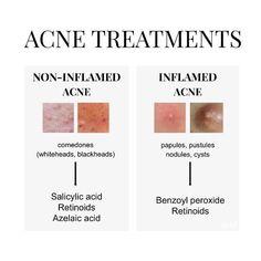 Skin Tips, Skin Care Tips, Back Acne Treatment, Acne Scar Removal, Face Skin Care, Acne Prone Skin, Oily Skin, Acne Skin, Tips Belleza