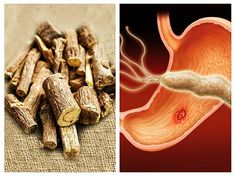 LEMNUL-DULCE distruge bacteria HELICOBACTER PYLORI Good To Know, Natural Remedies, Spices, Health, Food, Medicine, The Body, Spice, Health Care