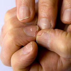 Living Healthier with Essential Oils: Healthy Nails and Cuticles See the easy home method now!