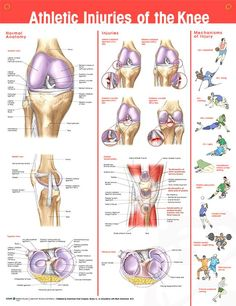 Athletic Knee Injuries anatomy poster provides overview of normal knee anatomy and common injuries, showcasing 11 images.
