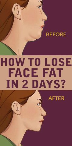 How To Lose Face Fat In 2 Days Face fat can make us look older and heavier than our actual weight. Regular workout with some exercises and a disciplined diet can help reduce face fat quickly. How to Lose Face Fat in 2 days Health And Nutrition, Health And Wellness, Health Tips, Health Fitness, Health Benefits, Health Care, Fitness Workouts, Easy Workouts, Herbal Remedies