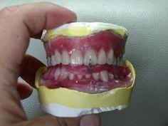 【企業名:石井技工所】 歯科医院に入れ歯を納品しています。 社内以外にも納品させていただいている歯科医院でも宣伝したいです。