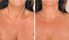 Θεραπείες για τη μείωση των ρυτίδων στο λαιμό | Toftiaxa.gr - Φτιάξτο μόνος σου - Κατασκευές DIY - Do it yourself