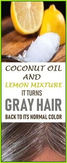 Natural Medicine, Herbal Medicine, Medicine Book, Herbal Remedies, Natural Remedies, Health Remedies, Headache Remedies, Hair Remedies, Prevent Grey Hair