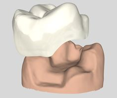 Dental Inlay vs Onlay Browsing thru online and found these graphics and thought I should share .. What do you think