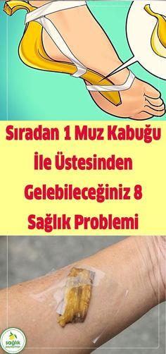 Yok artık öyle muzu yedikten sonra kabuğunu çöpe atmak. Çünkü çok önemli tam 8 rahatsızlığın şifası muzda gizli… #muz #banana #sağlık #muz kabuğu #şifa