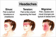 herbal remedies for headaches