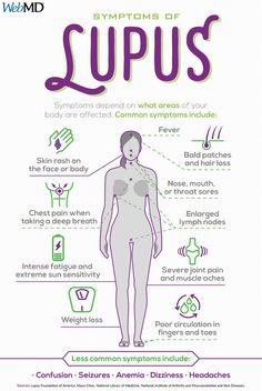 According to the Lupus Foundation of America, approximately million people in the U. have lupus. One aspect that sets lupus apart from RA or fibromyalgia is the combination of skin rashes with joint pain and fatigue. Nursing School Notes, Nursing Schools, Lpn Schools, Pediatric Nursing, Nursing Students, Medical Student, Medical Science, Lupus Facts, Lupus Foundation Of America