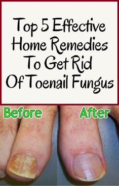 Watch This Video Mind Blowing Home Remedies for Toenail Fungus that Really Work Ideas. Astonishing Home Remedies for Toenail Fungus that Really Work Ideas. Foot Remedies, Natural Remedies, Health Remedies, Herbal Remedies, Natural Treatments, Sleep Remedies, Toenail Fungus Home Remedies, Treatment For Toenail Fungus, Fungus Toenails