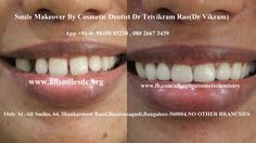 . Dr Trivikram (Dr Vikram), an expert cosmetic dentist in Bangalore offers smile makeovers. This treatment is not a surgery and your teeth can be straightened without braces/orthodontic treatment and can be finished in just 5-7 days. Read more at http://www.allsmilesdc.org/cosmetic-dentistry-faqs/