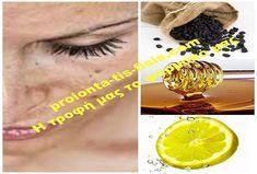 Πώς σταφίδες, λεμόνι και μέλι θα... εξαφανίσουν τις πανάδες σας Οι σπιτικές συνταγές μπορούν να κάνουν θαύματα. Δοκιμάστε αυτή τη θεραπευτική μάσκα Healthy, Styles, Yoga, Google, Tips, Health And Beauty, Health, Counseling