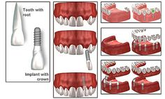 How Inexpensive Can Dental Implants Be