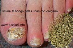 TuSalud.Info: Hongos en las uñas: elimínalos con orégano.