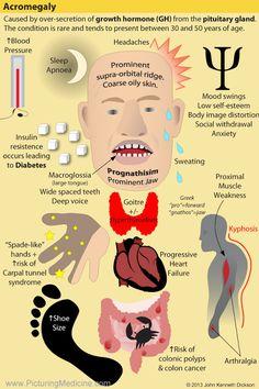 Acromegaly Archives - Nurses Tips Nursing Tips, Nursing Notes, Ob Nursing, Oral Pathology, Medical Surgical Nursing, Nursing Mnemonics, Nursing Students, Medical Students, Nursing Schools