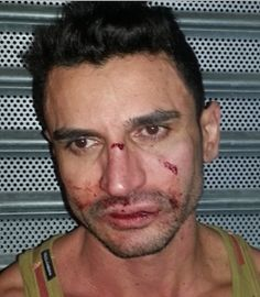New York: Two arrests follow homophobic attack