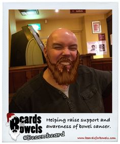 Here's RekV8 looking a little itchy for the end of #Decembeard