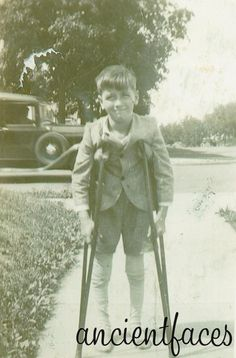 Poor little Edwin Ekleberry had two broken legs after a car ran him down. Strong boy though - look at the expression on his face! Remember, back then cars were made out of steel :(  More: http://www.ancientfaces.com/research/photo/1248372/edwin-ekleberry-family-photo