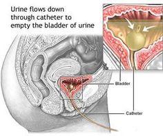 Top Symptoms of Uterine Fibroids in Women