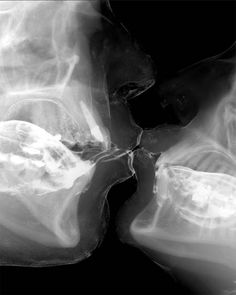 Two people kissing x-ray