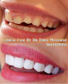 #dentist #beirut #lebanon #hollywoodsmile #veneers #lumineers #teethwhitening #dentalclinic #emilemedawar http://www.emilemedawar.com/