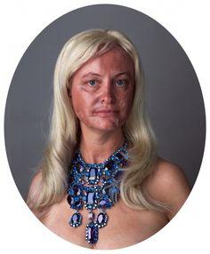 Self Portrait / Portrait with Face Peel, 2011 Face Peel, Nz Art, Collaboration, Turquoise Necklace, Contemporary Art, People, Photography, Portraits, Models