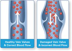 Common Questions Regarding Vein Treatment