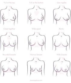 There are all types of breasts that exist naturally. When you get a breast augmentation, the natural shape of your breasts is enhanced and made bigger. Although some corrections can be done, it doesn't mean that if you have wide-set breasts that you'll have lots of cleavage. Realistic expectations will render results that you'll be happiest with. - www.DrYoungForever.com