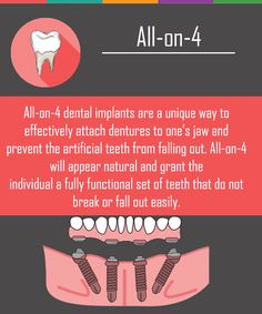 Dental Implants: no more dentures. dentures are an option to get a complete, gorgeous smile. Learn how implant retained dentures enhance your smile Dental Implant Procedure, Implant Dentistry, Teeth Implants, Cosmetic Dentistry, Dental Implants, Dental Surgery, Teeth Health, Dental Health, Dental Care