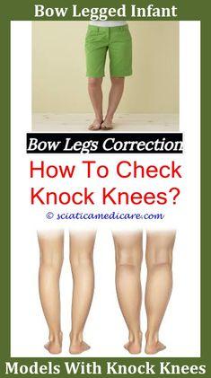 legs-bow-legged-women