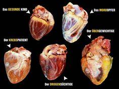 Angela Strassheim è una fotografa newyorchese che scatta immagini dopo le autopsie. Recentemente ha pubblicato una serie di foto che mostrano i cuori di cinque persone che hanno avuto morti diverse. Le foto sono state pubblicate dalla rivista