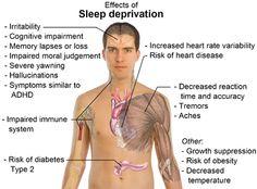Narcolepsy Sleep Disorders   Sleep Disorders :: St. David's NeuroTexas Institute
