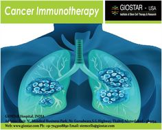 Know about #Cancer Treatment & Procedure of Cancer Cell Immunotherapy at GIOSTAR by Cancer Specialist & Medical Professionals.  Email : stemcells@giostar.com